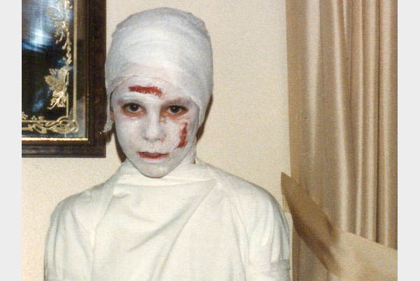 Turn that head wound into a costume opportunity! This gauze zombie costume  uses cornstarch, flour and food coloring for blood and gauze and an old  sheet for